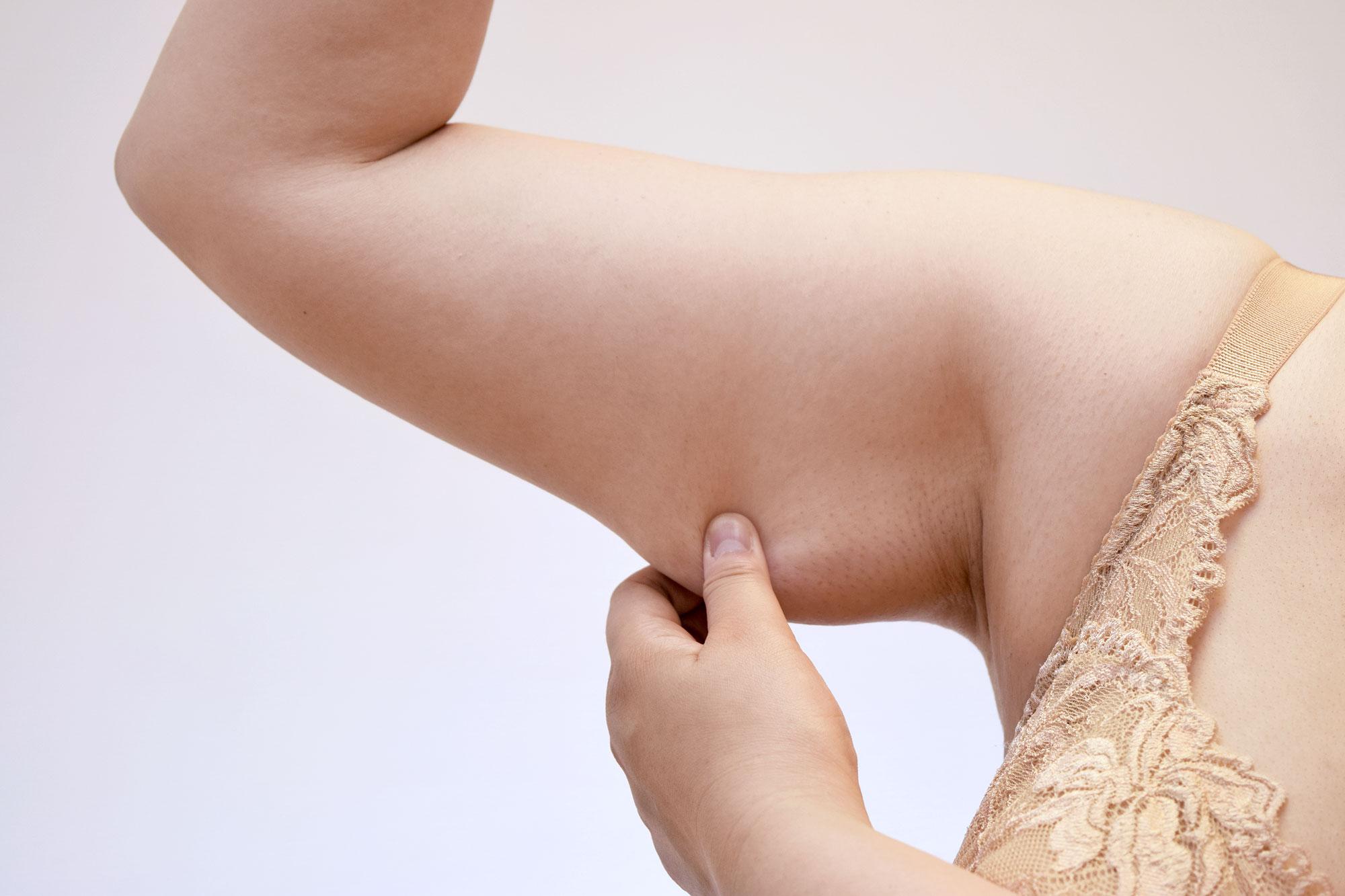 ta bort gäddhäng med armkirurgi