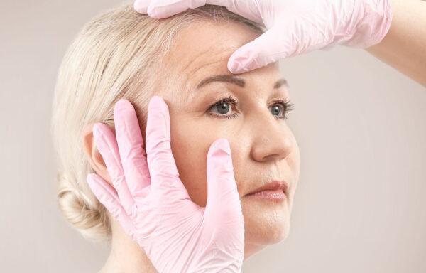 förberedelse inför pannlyft på äldre kvinna