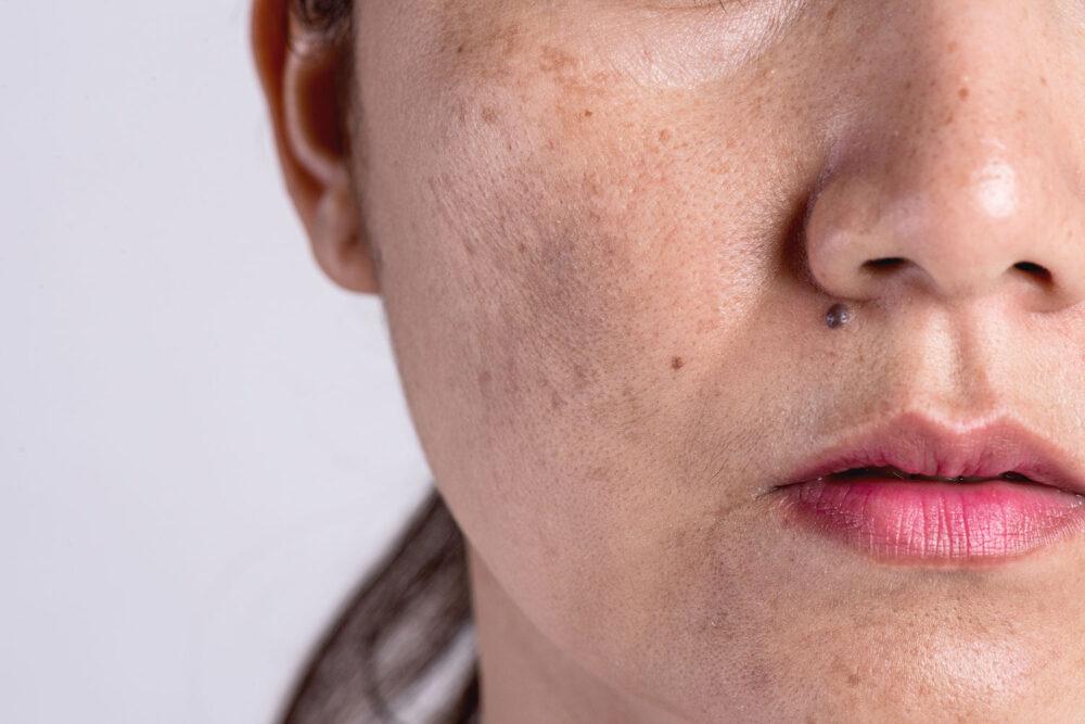 pigmentfläckar i ansiktet
