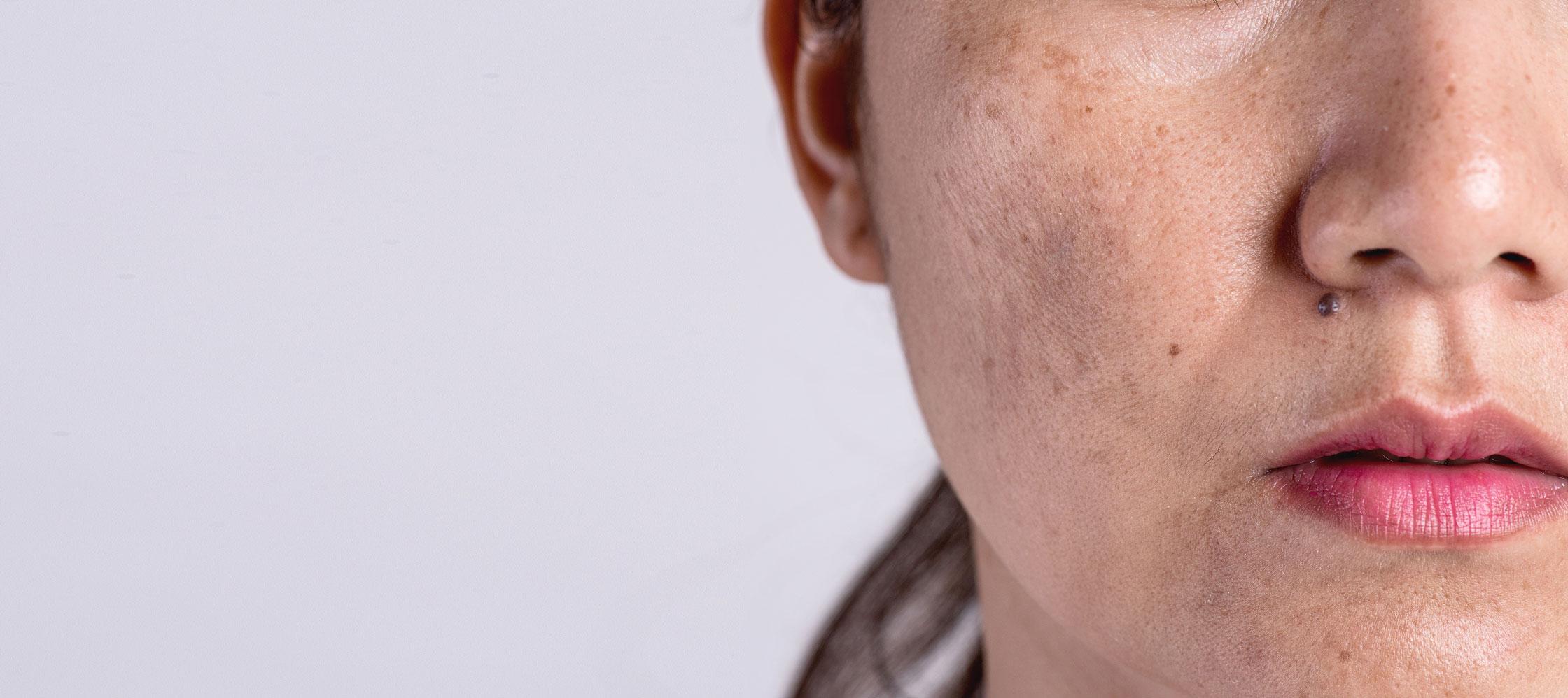 förebild på pigmentfläckar innan laserbehandling