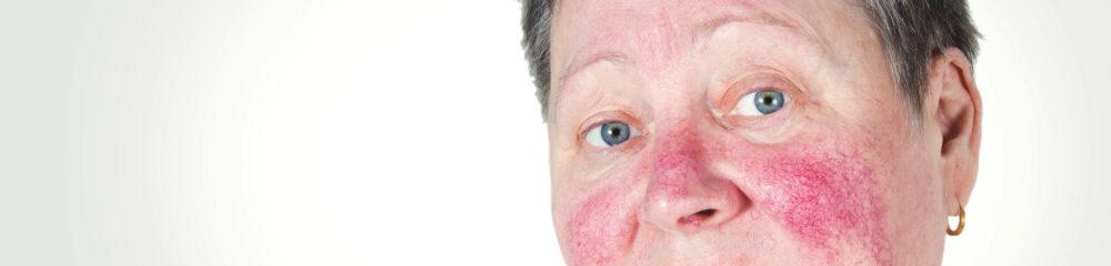 rosacea hos äldre kvinna innan behandling