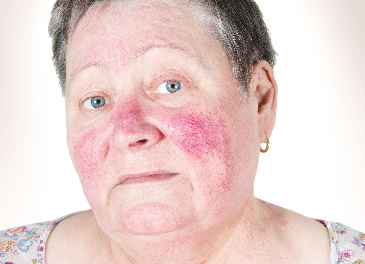 rosacea hos äldre kvinna före behandling