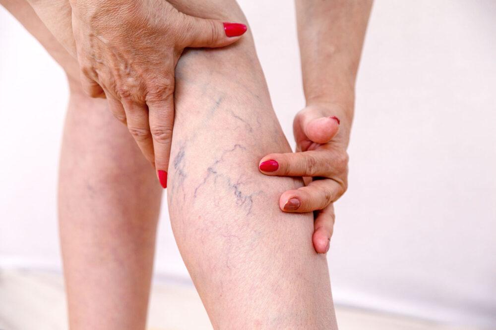 ytliga blodkärl på ben hos kvinna