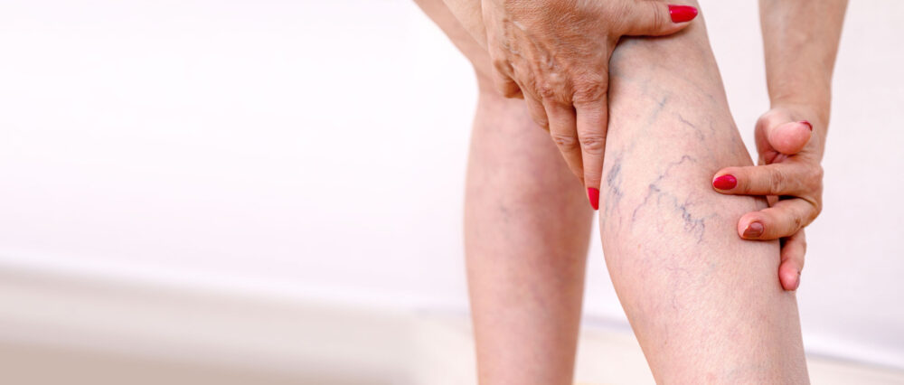 ytliga blodkärl på ben hos äldre kvinna