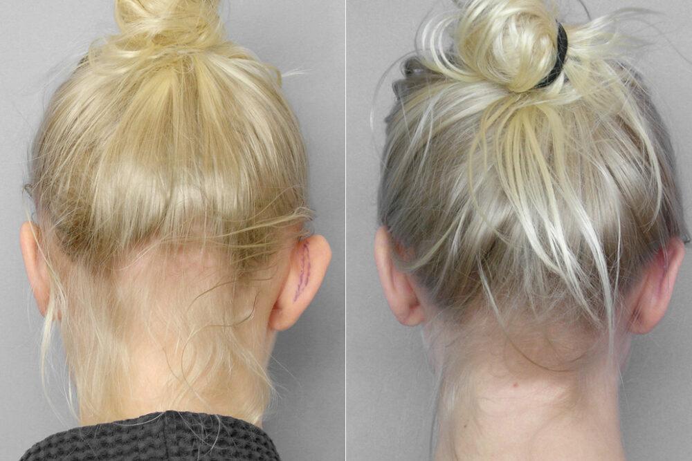 Före- och efterbild på resultatet efter öronplastik för att få mindre utstående öron.