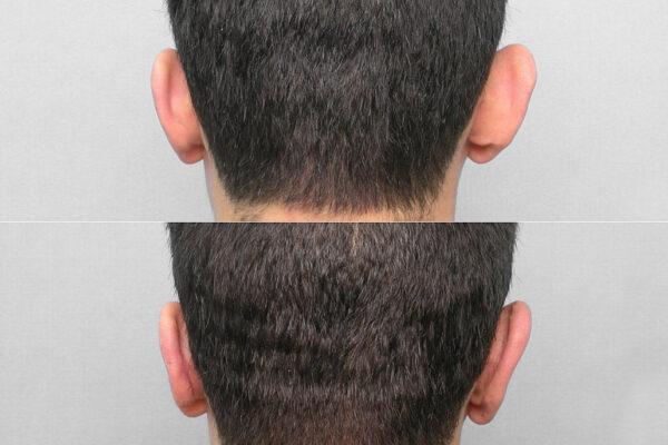 Före- och efterbild på person som genomfört öronplastik för mindre utstående öron.